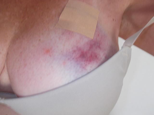 Bruised Boob 10